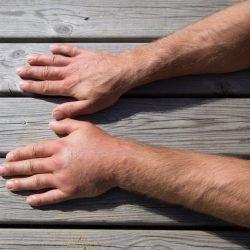 Geschwollene Hände - Ursachen, Diagnose und Behandlung